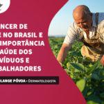 O Câncer de pele no Brasil e sua importância na saúde dos indivíduos e trabalhadores.